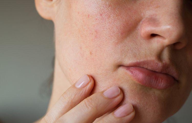 Vakuový čistič pórů je pomocník při bezbolestném odstraňování pórů, vyrážek a akné z citlivé pleti