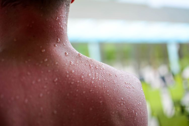 Vliv saunování na pokožku